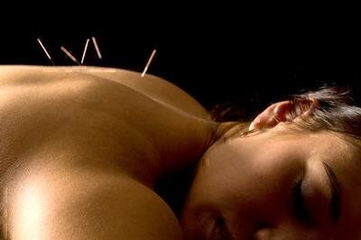 How to Choose an Acupuncturist image