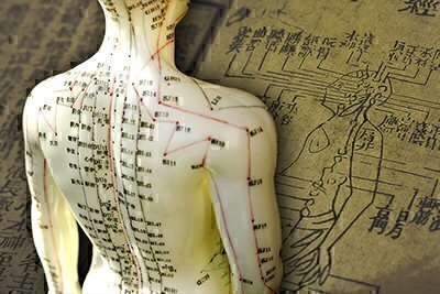 Acupuncture History and Trends image