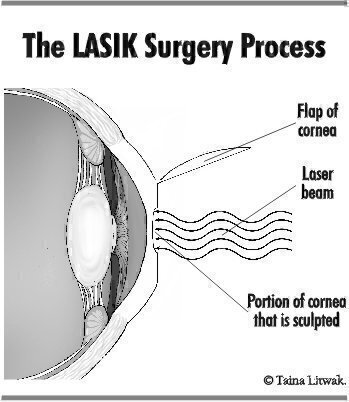 Figure 2—The LASIK Surgery Process